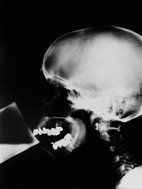 Isa Genzken [1991] X-Ray. Gelatin silver print, 100 x 80 cm